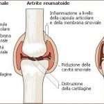 Artrite O Artrosi? Facciamo Chiarezza