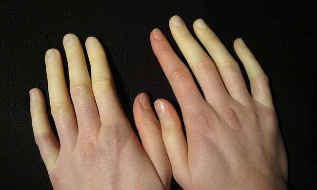 Le mie mani cambiano colore col freddo